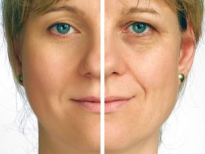 laser treatment for dark circles under eyes